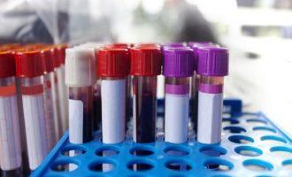 Permalink ke Virus Corona di Indonesia Tak Unik, Temuan Vaksin Apapun Bisa Dipakai